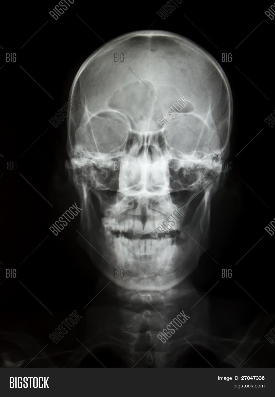 Front Face Skull X-ray Image & Photo (Free Trial) | Bigstock