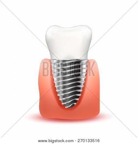 Realistic Tooth Implant With Metallic Screw In Pink Gum Isolated On White