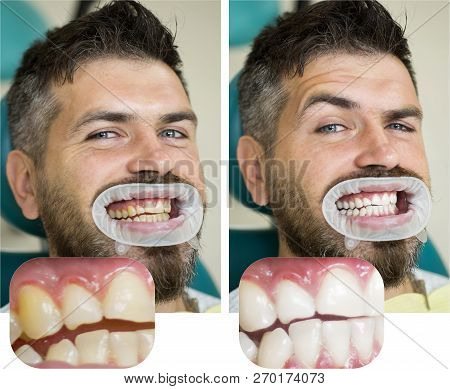 Whitening After And Before. Man In Dental Chair. Dentist Preparing For Dental Whitening. Health Medi