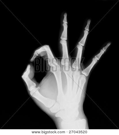 X-ray of both human hand (OK!)