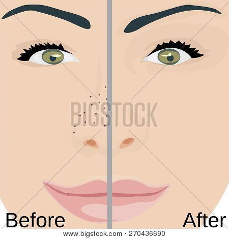 Blackheads Remove On Nose Treatment Before And After. Pore Reduce Skin Problems Vector Illustration