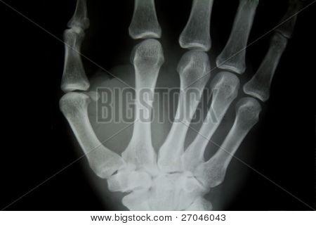 X-ray of human hand.
