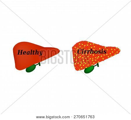 Cirrhosis Of The Liver. Infographics. Vector Illustration On Isolated Background.