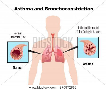 Asthma Attack Medical Educative Chart Poster With Depiction Of Normal And Inflamed Bronchial Tube Fl