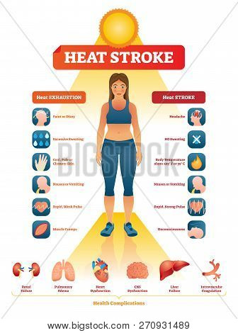 Heat Stroke Vector Illustration. Exhaustion Symptoms Labeled Medical List. Examples With Dizzy Head,