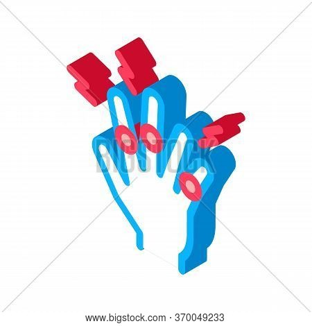 Arthritis Of Finger Joints Icon Vector. Isometric Arthritis Of Finger Joints Sign. Color Isolated Sy