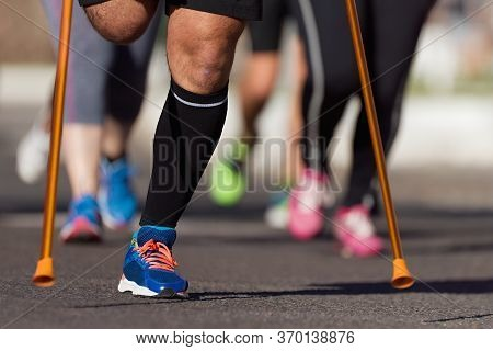 The Body Affected Is Running A Marathon, Amputation Of The Leg