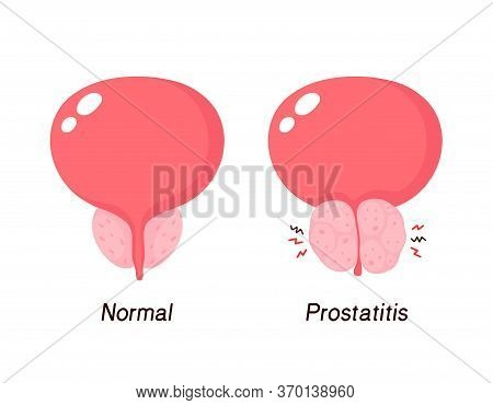 Normal Prostate And Benign Prostatic Hyperplasia. Vector Flat Cartoon Illustration Icon Design.isola