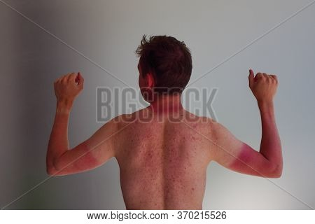 The Guy Burned In Sun In City, The Silhouette Of T-shirt And Watch. Reddened With Acne Skin On Hands