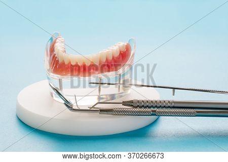 Teeth Model Showing An Implant Crown Bridge Model/ Dental Demonstration Teeth Study Teach Model.