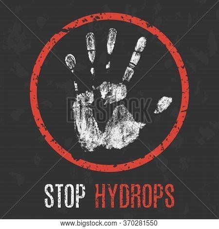 Conceptual Vector Illustration. Human Sickness. Stop Hydrops.