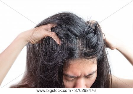 Women Head With Dandruff Caused By The Problem Of Dirty. Or Caused By Skin Disease Or Seborrheic Der