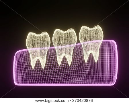 Teeth Wireframe Mesh. Neon Grid Molar. Connection Structure. Dental Medicine, Health Concept. 3d Ren