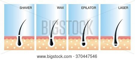 Diagram Of Laser Hair Removal.laser Hair Removal Vector.  Vector Illustration Of Different Methods O