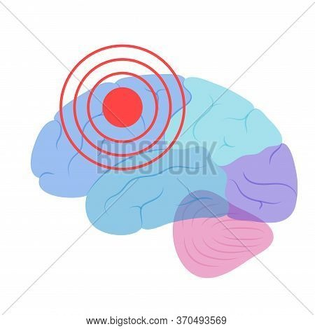 Flat Vector Isolated Illustration Of Pain, Inflammation Or Tumor In Of Human Brain Anatomy. Occipita