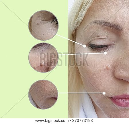 Woman Face Wrinkles Before And After Treatment, Tightening