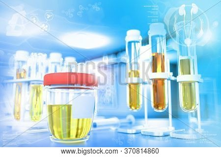 Urine Sample Test For Coronavirus Or Protein In Urine Proteinuria - Proofs In Modern Pollution Resea