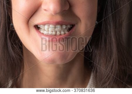 Woman Looks Teeth With Braces. Dental Care Photo With Orthodontic Accessories. Close Up