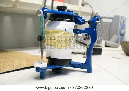 Workplace Of A Dental Technician With Plaster Models In An Articulator