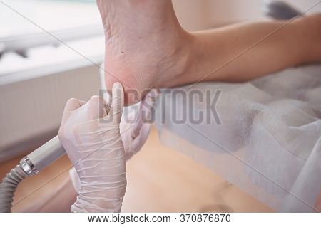 Podiatrist Using Grinding Equipment And Making Procedure Polish For Feet Pedicure. Podology Beautici