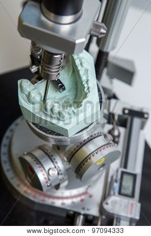 machine for the acquisition of file for the construction of surgical dima for dental prostheses poster