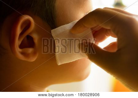 Wound on face of child with hand.Close up