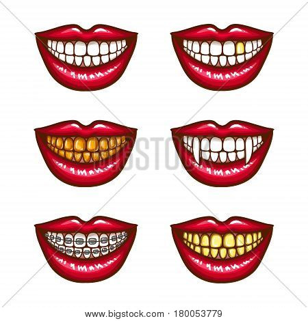 A collection of pop art icons of red female lips - smiling, with vampire fangs, with metal dental crowns, with braces. Badges, stickers, design elements, prints for T-shirts