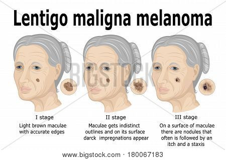 The stages of transformation of Lentigo maligna to invasive melanoma