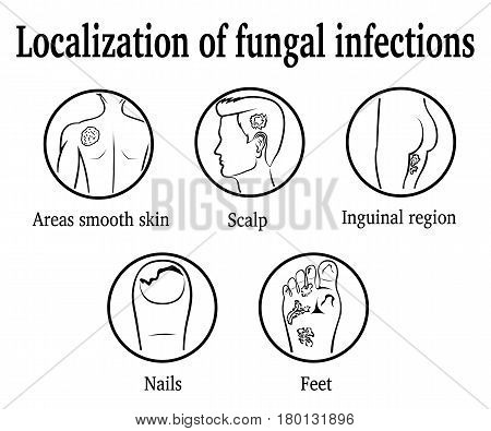 The localization of fungal infections: nails, feet, inguinal region, scalp, areas smooth skin
