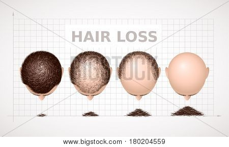 Hair loss. Graph of four stages of alopecia. Eps8. RGB Global colors