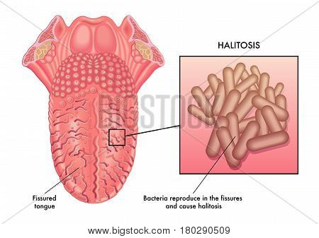 vector medical illustration of a cause of halitosis