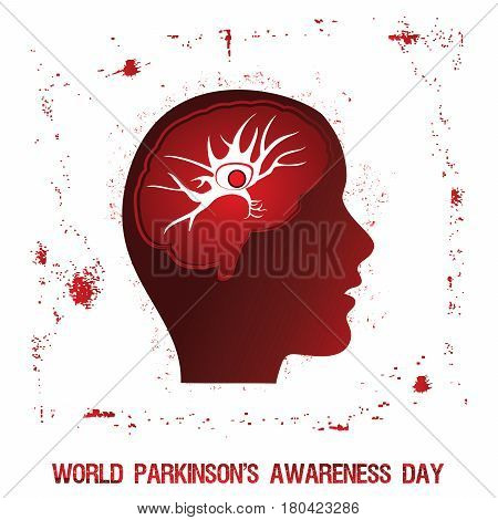 An abstract illustration of Parkinson's disease with a single neuron and an abnormal protein structure in brain