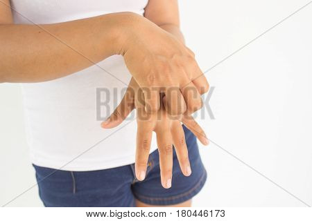 Woman scratch her hand from the itch, Woman healthcare concept and ideas