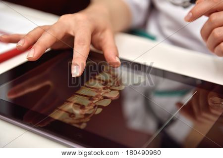 Doctor Using Tablet With X-ray
