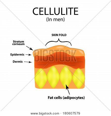 Skin aging in men. Cellulitis. Infographics. Vector illustration on isolated background.
