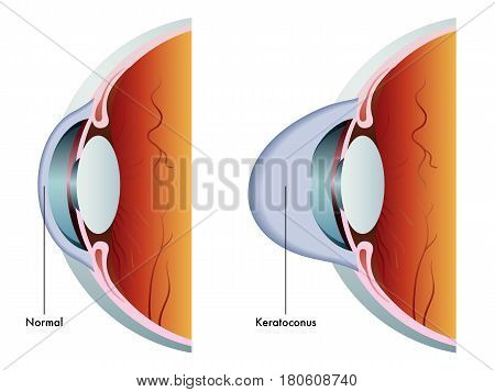 vectorr medical illustration of the symptoms of keratoconus