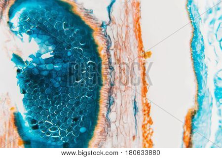Medical Lab Prepared Microscopic- Weevil Rye