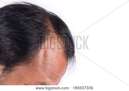 bald head of young man on white background