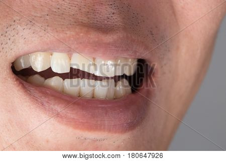 Teeth Injuries or Teeth Breaking in Male. Trauma and Nerve Damage of injured tooth Permanent Teeth Injury.