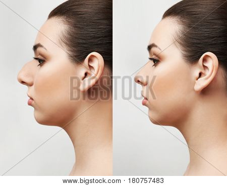Young woman before and after rhinoplasty on light background. Plastic surgery concept
