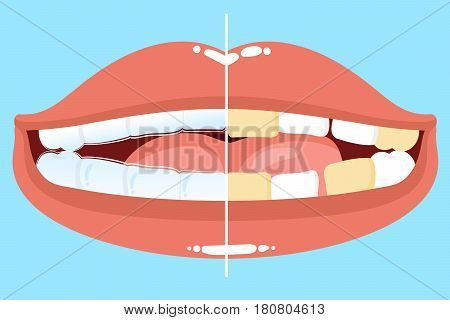 cute cartoon mouth with tooth wear invisible braces before and after