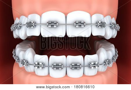 Human jaw teeth and brackets. 3d illustration
