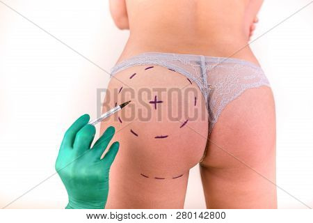Surgeon Drawing Marks On Female Body Before Plastic Operation, White Background. Beautician Touch An