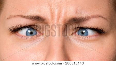 Pretty Woman eyes suffering from strabismus. Close up of crazy female eyes with squint. Cute girl with mad, comic or surprised face.