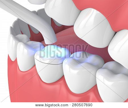 3D Render Of Jaw With Dental Polymerization Lamp And Light Cured Onlay