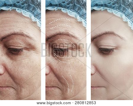 woman wrinkles before and after procedures regeneration poster