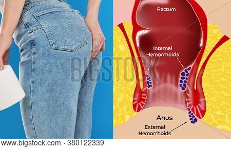 Woman With Toilet Paper Suffering From Hemorrhoid Pain, Closeup. Illustration Of Unhealthy Lower Rec