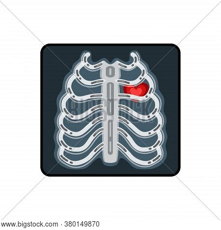 X-ray Vector Illustration. X-ray Of A Human Breast With A Red Heart.