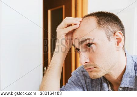 Young Man Looking At Mirror Worry About Balding.