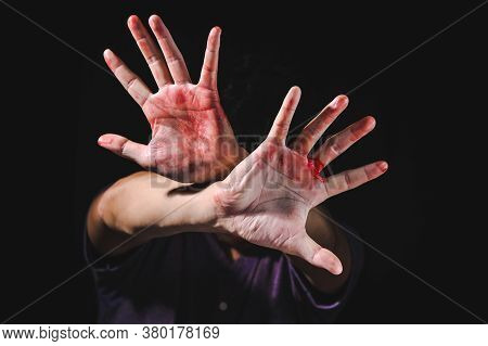Hand Defending Victim Of Human Trafficking For Stop Violence And Abuse Human Trafficking Harassment